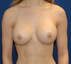 Breast Augmentation 2- After.jpg