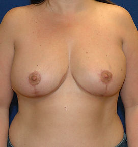 Breast Reduction 1- After.jpg