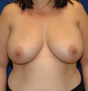 Breast Reduction 1- Before.jpg