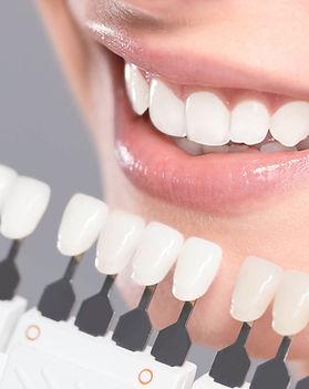 zahnaesthetik-bleaching-veneers-zahnarzt