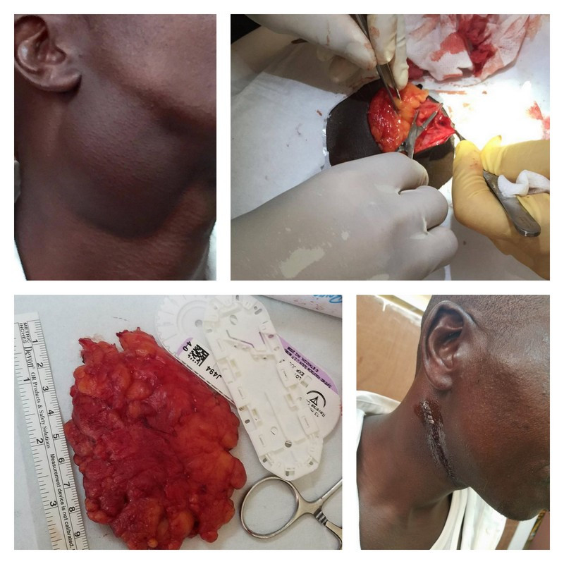 Lipoma removed from this man's neck