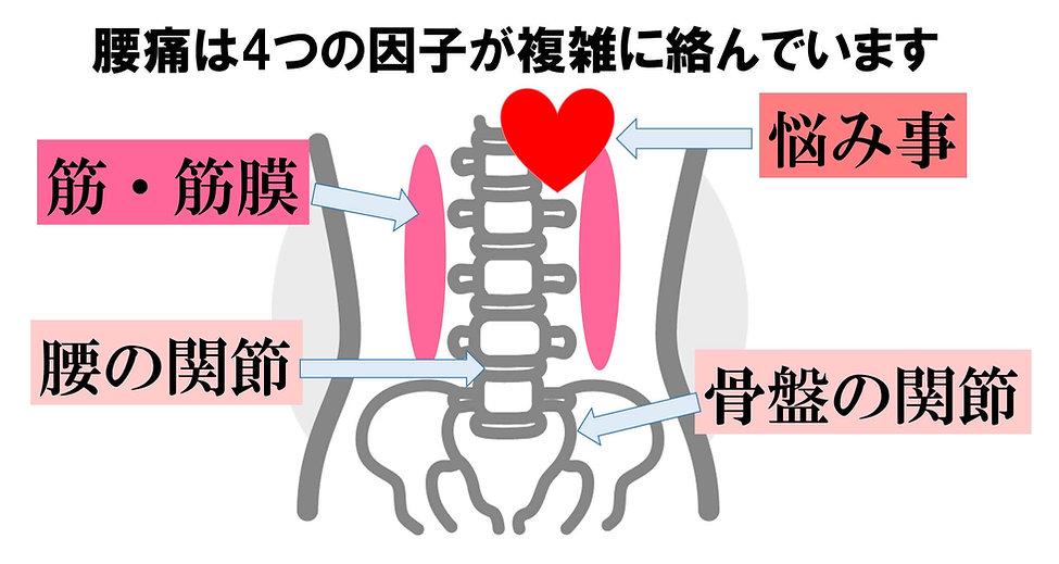佐賀市 整骨院 交通事故 頭痛 坐骨神経 骨盤矯正 オススメ 人気 腰痛の原因は4つ 筋、骨盤、腰の関節、メンタル