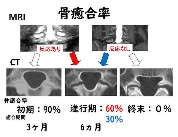 腰椎分離症 治療方針