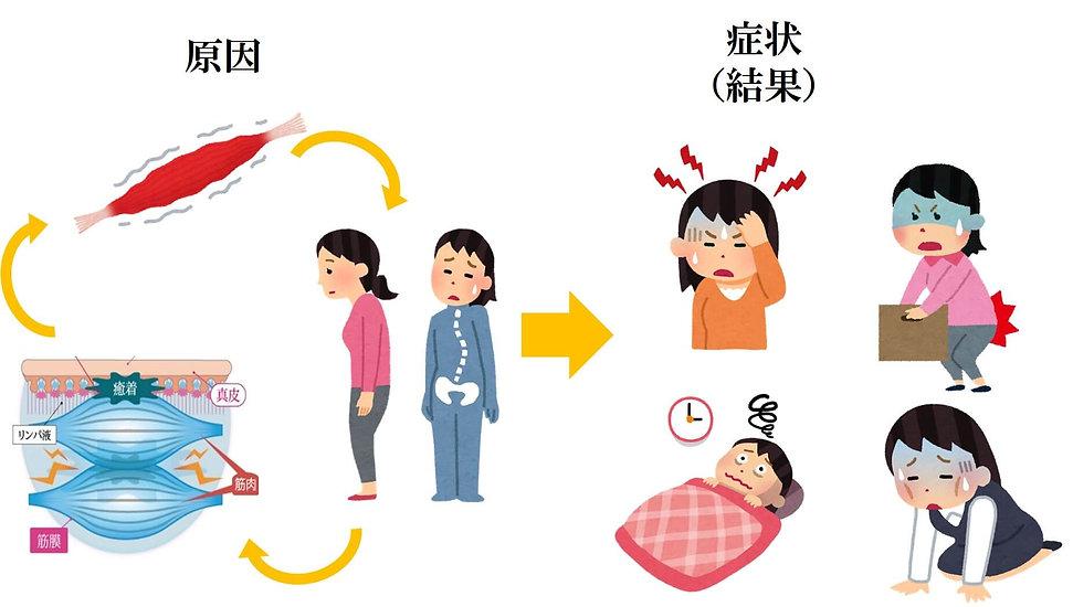 佐賀市 整骨院 交通事故 頭痛 坐骨神経 骨盤矯正 オススメ 人気 症状の原因