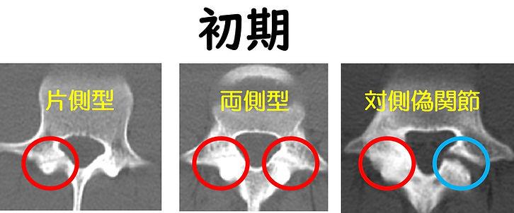 腰椎分離症 CT