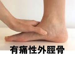 スポーツ障害 佐賀 足関節 有痛性外脛骨 捻挫