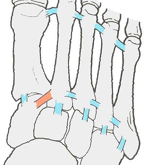 リスフラン靭帯損傷 スポーツ障害 佐賀 スポーツ整体 よし姿勢&スポーツ整骨院
