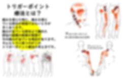 佐賀市 整骨院 交通事故 頭痛 坐骨神経 骨盤矯正 オススメ 人気 トリガーポイント療法とは