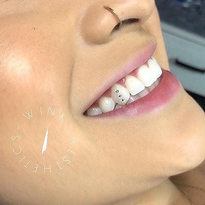 Tooth gems 💕_._#toothgems #toothgemssan