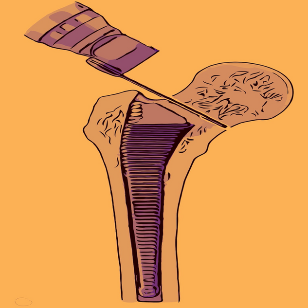 femur osteotomy logo.png