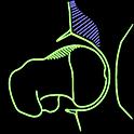 femoral acetabular inpingement.PNG