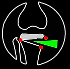 logo tibia osteotomy.PNG