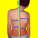 sacral, slope, app, Pelvic, incidence,PI, slope, SS,Tilt,PT, Neutral, Negative, Positive, stable, spinopelvic , classification, lordosis, kyphosis, angle, measure, x-rays, radiographic, orthopaedic, vertebral, body, plumbline , coronal, compensation, scoliosis, Thoracic,Thoracolumbar, Lumbar, Curves, Cobb, plate, Idiopathic, Adolescent, juvenile, scheurman, apical, convex, method, end,Trunk, Shift, Obliquity, Leg, Length, Discrepancy, Translation , apex ,Rotation, Pedicle, edge, symmetric, subluxation, Spondylolisthesis ,C7, Lateral, Olisthesis ,