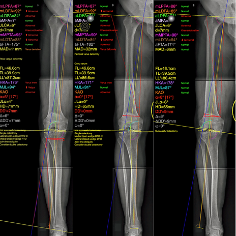 8 point selection optimum osteotomy.PNG