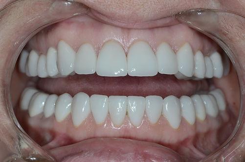 Восстановление зубов Дмитров, установка коронок Дмитров, исправление прикуса без скобок Дмитров