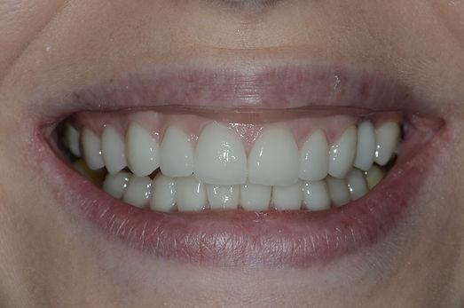 Отбеливание зубов Дмитров, лечение зубов Дмитров, исправление прикуса Дмитров