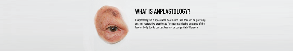 2020_0601_What-is-Anaplastology.png