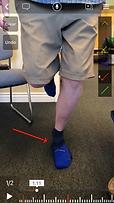 SL squat - Excessive Pronation