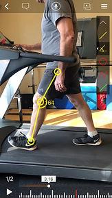 Gait analysis - knee flexion abnormal