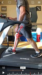 Gait analysis - knee flexion normal