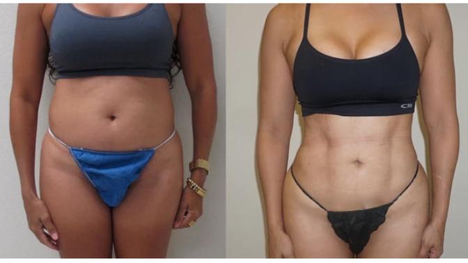 9 Common Vaser Liposuction Misconceptions