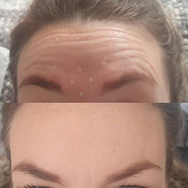 forehead anti wrinkle.jpg