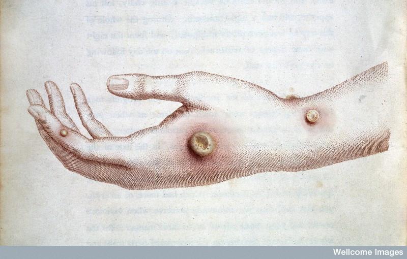 Cowpox on the hand of milkmaid Sarah Nelmes
