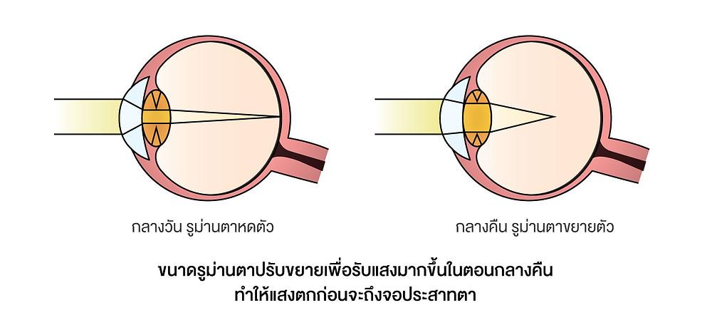 กลไกการเกิดภาวะสายตาสั้นตอนกลางคืน เมื่อขนาดรูม่านตาปรับขยายเพื่อรับแสงมากขึ้นในตอนกลางคืน ทำให้แสงตกก่อนจะถึงจอประสาทตา