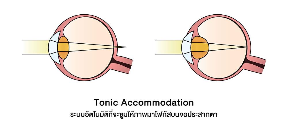 กลไกการเกิดภาวะสายตาสั้นตอนกลางคืน ระบบอัตโนมัติที่จะซูมให้ภาพมาโฟกัสบนจอประสาทตา
