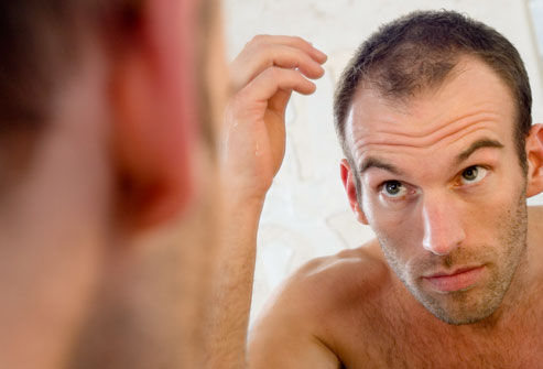 getty_rf_photo_of_balding_man_in_mirror.jpg
