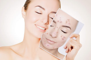 tratamento-natural-para-acne.jpg