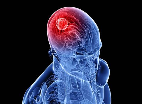 The Changing Brain - Neuroplasticity