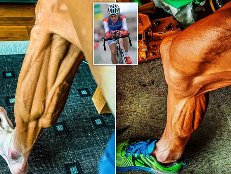 Muscle Fibre Types Of World-Class Cyclists