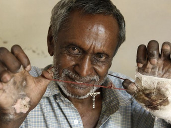 Bill to end discrimination against leprosy patients in next session of parliament