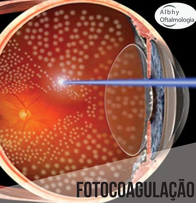 fotocoagulacao-albhy-oftalmologia-sao-pa