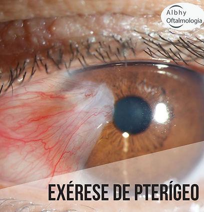 exerese-de-pterigeo-albhy-oftalmologia-s