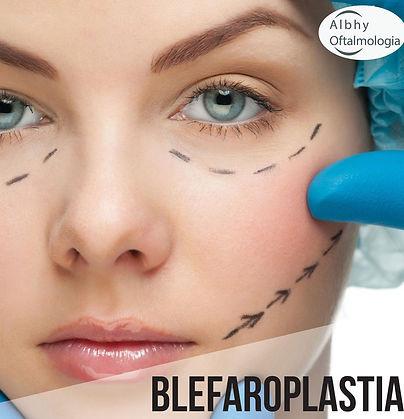 blefaroplastia-albhy-oftalmologia-sao-pa