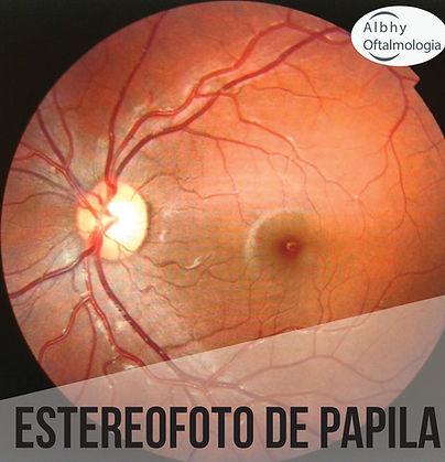 estereofoto-de-papila-albhy-oftalmologia