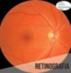 retinografia-albhy-oftalmologia-sao-paul