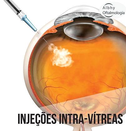 injecoes-intra-vitreas-albhy-oftalmologi