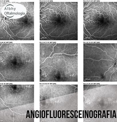 angiofluoresceinografia-albhy-oftalmolog