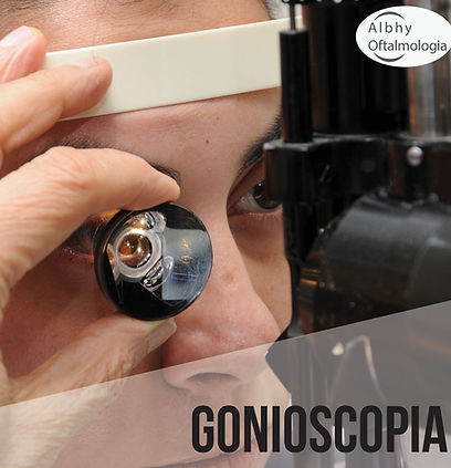 gonioscopia-simples-albhy-oftalmologia-s