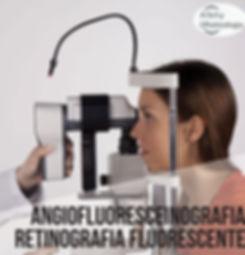 angiofluoresceinografia-retinografia-flu