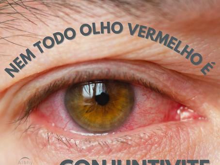 Nem todo olho vermelho é conjuntivite!!