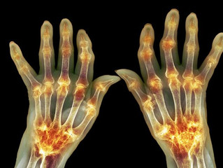 Number of Americans Reporting Arthritis-Related Activity Limitations on the Rise