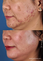 Acne treatment | Zo Skin Health Products by Dr Zein Obagi at Enhanced Wellness of NM