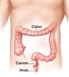 cancer colo.jpg