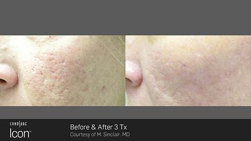acne-scar3.jpg