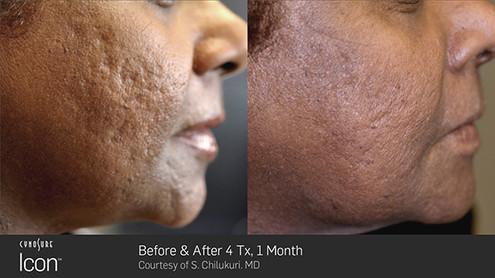acne-scar4.jpg