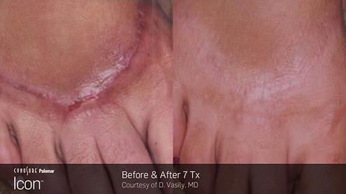 acne-scar5.jpg